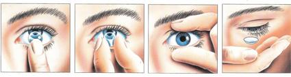 Odstranjevanje kontaktne leče