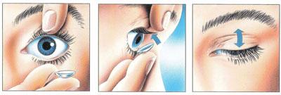 Pravilno vstavljanje kontaktne leče